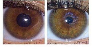 تغییر رنگ چشم با بیوکنزی