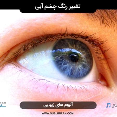 بیوکنزی چشم آبی