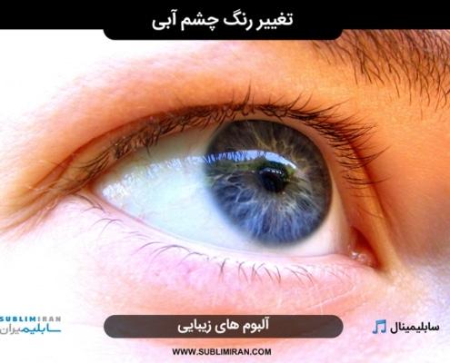 تغییر رنگ چشم به آبی