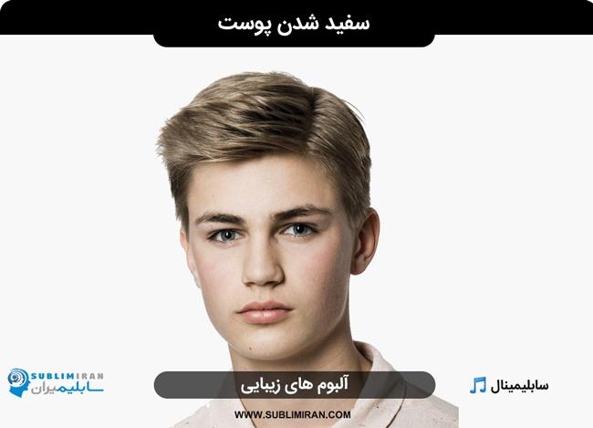 سفید شدن پوست