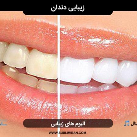 تقویت دندان پوسیده