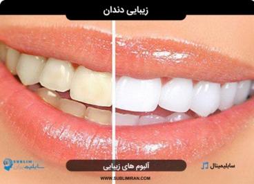 سابلیمینال دندان سفید