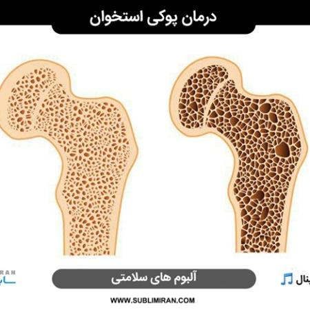 درمان درد پوکی استخوان