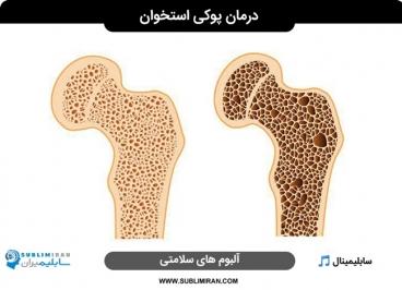 سابلیمینال درمان پوکی استخوان