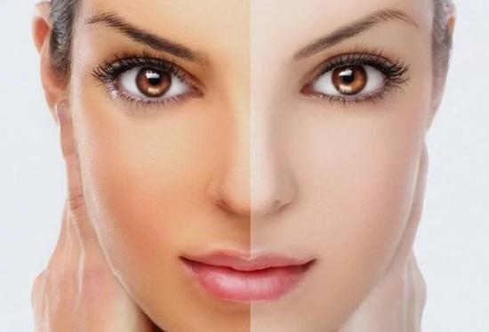 روشن کننده پوست صورت