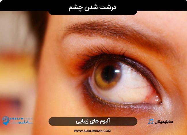 سابلیمینال درشت شدن چشم