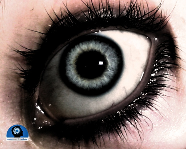 بیوکنزی چشم درشت