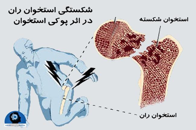 علایم پوکی استخوان در خانم ها