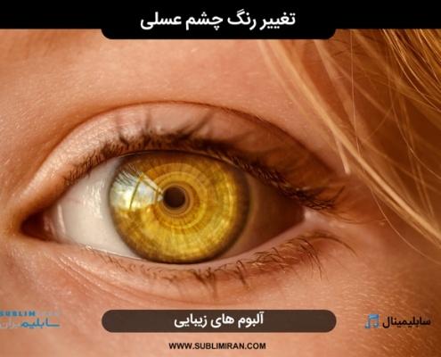 بیوکنزی چشم عسلی