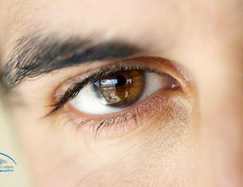 درشت شدن چشم مردان