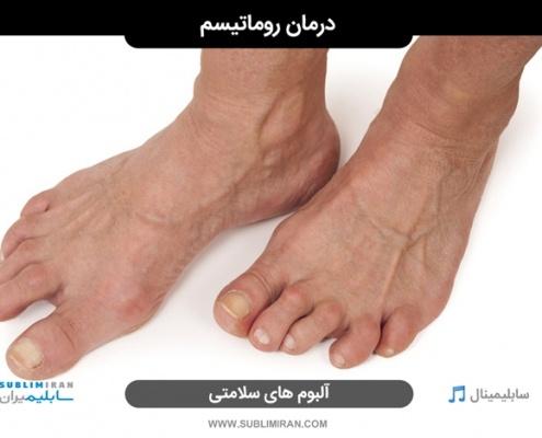 درمان روماتیسم مفصلی پا
