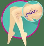 درمان دریچه های لانه کبوتری پا