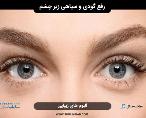 سابلیمینال گودی زیر چشم