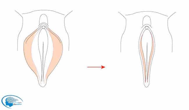 سابیمینال جذابیت واژن