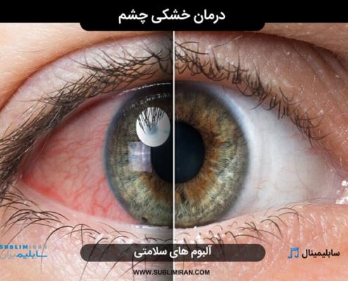 سابلیمینال درمان خشکی چشم