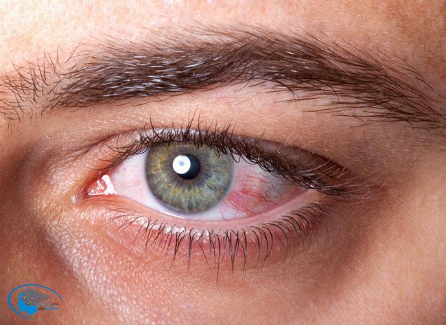 سابلیمینال خشکی چشم