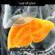 سابلیمینال درمان کبد چرب