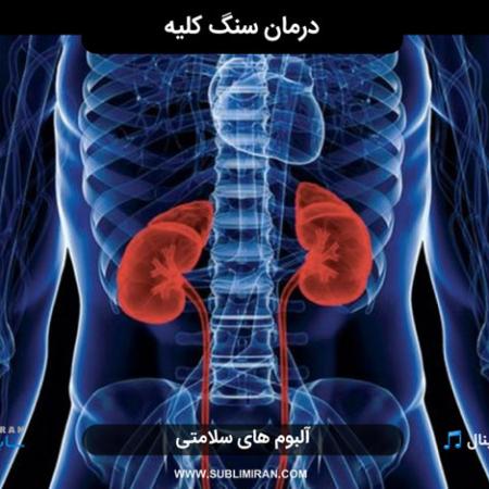 سابلیمینال درمان سنگ کلیه