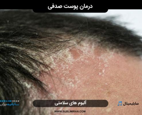 سابلیمینال درمان پوست صدفی