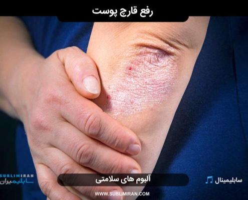 سابلیمینال درمان عفونت قارچی پوست