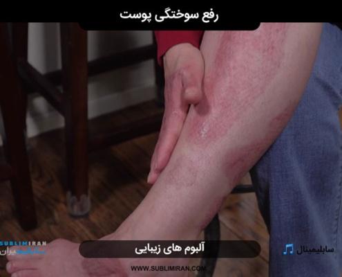 رفع سوختگی پوست